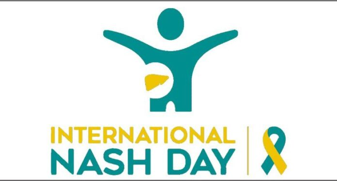 PGIMER-Organising-Webinar-on-the-Occasion-of-International-NASH-Day-780x418